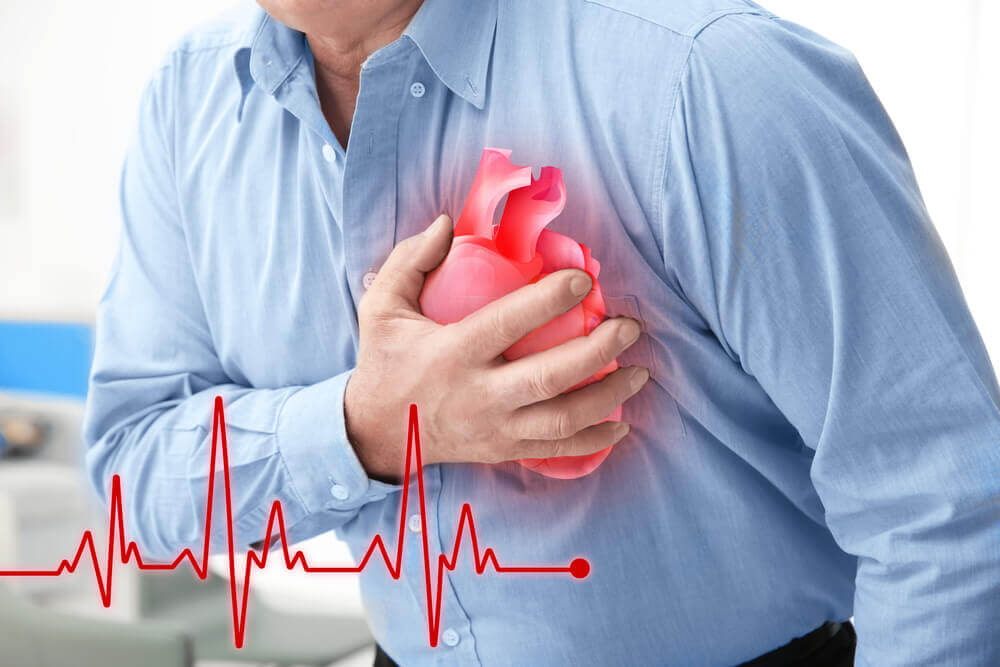 Image result for bệnh tim mạch